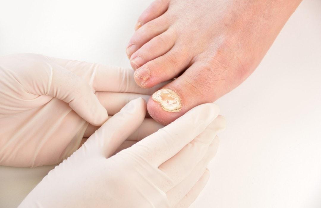 Toenail Infection Treatment
